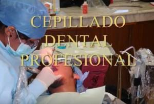 cepillado denta profesional